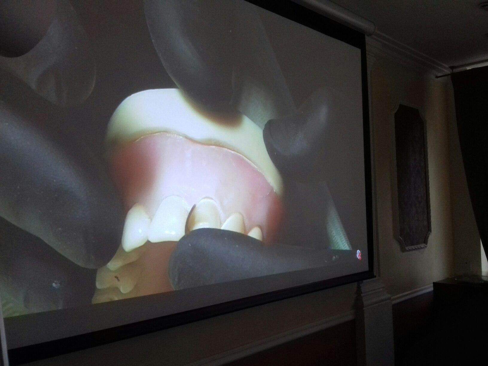 Мастер-класс Анатолия Мартынова «Секреты успешной реставрации – фронтальная группа зубов. Цвет и Свет!»
